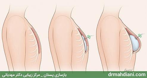 ترمیم و بازسازی سینه