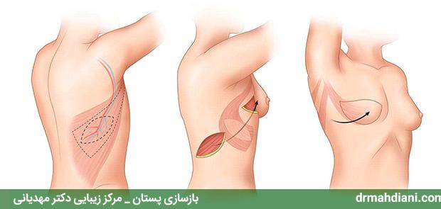 بازسازی پستان