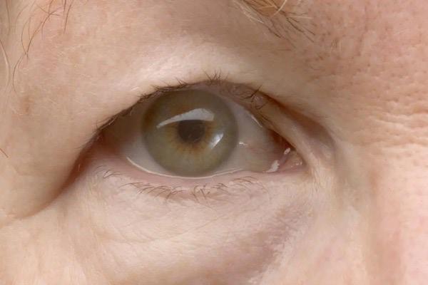 تزریق چربی پلک چشم